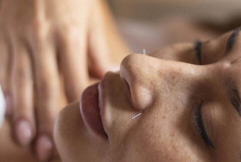 Acupuncture as migraines treatment
